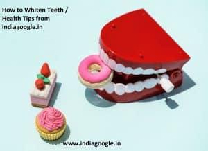 how to whiten teeth | Health tips